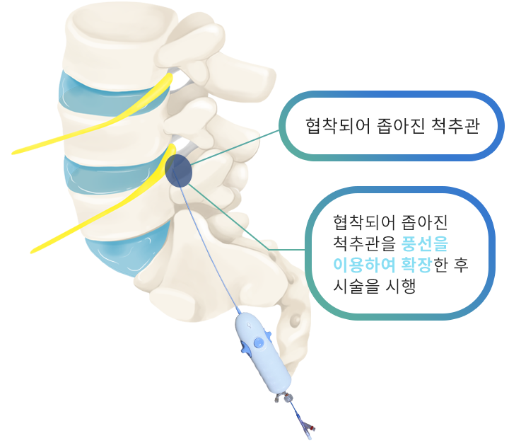 풍선확장신경성형술