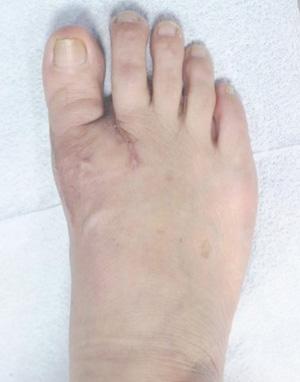 발목 사진2