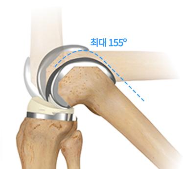 세계최초 환자으 뼈크기와 남녀 뼈의모양을 환자맞춤으로