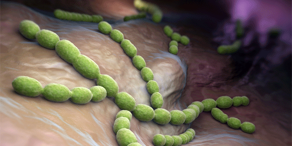 폐렴사슬알균(페렴)